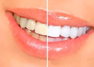 Методы отбеливания зубов в Кирове
