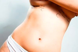 Как проходит процедура подтяжки груди в Кирове